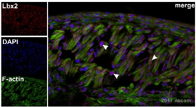Immunocytochemistry/ Immunofluorescence - Anti-Lbx2 antibody (ab76728)