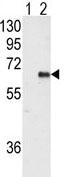Western blot - Anti-AMPK alpha 2 antibody (ab76792)