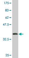 Western blot - Anti-Glucokinase antibody (ab76807)