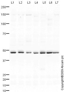 Western blot - Anti-RAB11-FIP2 antibody (ab76892)