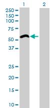 Western blot - Anti-ZCCHC6 antibody (ab76901)