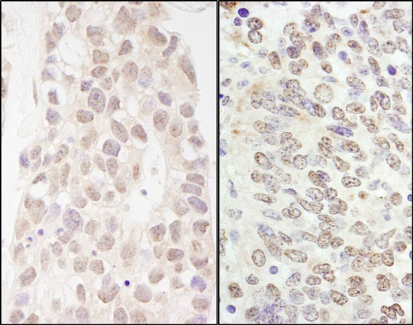 Immunohistochemistry (Formalin/PFA-fixed paraffin-embedded sections) - Anti-p66 beta  antibody (ab76925)