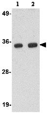 Western blot - Anti-POLR3F antibody (ab76951)
