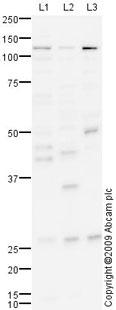 Western blot - Anti-DDR2 antibody (ab76967)