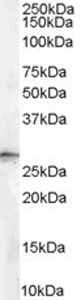 Western blot - Anti-14-3-3 sigma antibody (ab77187)