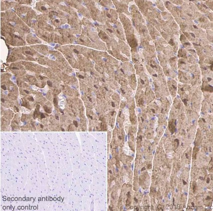 Immunohistochemistry (Formalin/PFA-fixed paraffin-embedded sections) - Anti-Myoglobin antibody [EP3081Y] (ab77232)