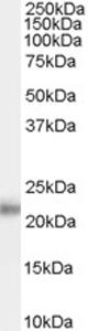 Western blot - Anti-Kallikrein 2 antibody (ab77253)