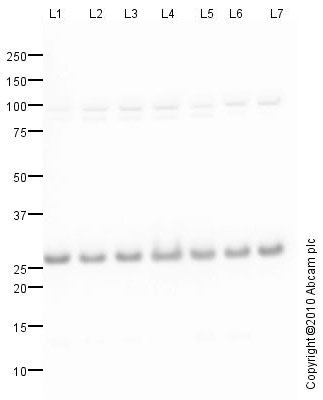 Western blot - Anti-integrin beta 4 binding protein antibody (ab77298)