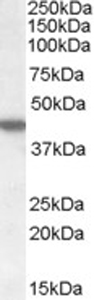Western blot - Anti-CK1 epsilon antibody (ab77336)