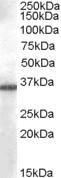 Western blot - Anti-AKR1B10 antibody (ab77378)
