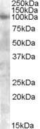 Western blot - Anti-FGFR2 antibody (ab77406)