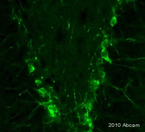 Immunohistochemistry (PFA perfusion fixed frozen sections) - Anti-Doublecortin antibody - Neuronal Marker (ab77450)