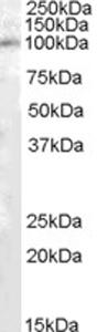 Western blot - Anti-PAM antibody (ab77592)