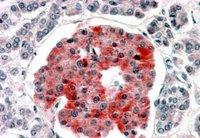 Immunohistochemistry (Formalin/PFA-fixed paraffin-embedded sections) - Anti-Kir6.2 antibody (ab77637)