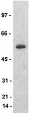 Western blot - Anti-CORO2A antibody (ab77707)
