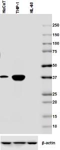 Western blot - Anti-CEACAM6 antibody [9A6] (ab78029)