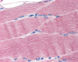 Immunohistochemistry (Formalin/PFA-fixed paraffin-embedded sections) - SLC40A1 antibody (ab78066)
