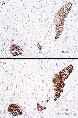 Immunohistochemistry (Formalin/PFA-fixed paraffin-embedded sections) - Anti-beta III Tubulin antibody [2G10] (ab78078)