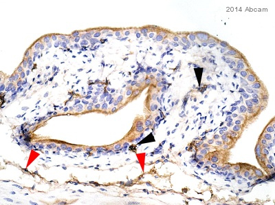 Immunohistochemistry (Formalin/PFA-fixed paraffin-embedded sections) - Anti-Uroplakin III [SFI-1] antibody (ab78196)