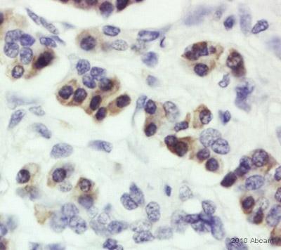 Immunohistochemistry (Formalin/PFA-fixed paraffin-embedded sections) - Anti-SEL1L antibody (ab78298)