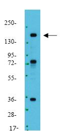 Western blot - Anti-Insulin Receptor (phospho Y1158) antibody (ab78355)