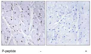 Immunohistochemistry (Formalin/PFA-fixed paraffin-embedded sections) - Anti-v-Myb + c-Myb (phospho S12) antibody (ab78892)
