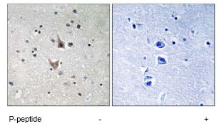 Immunohistochemistry (Formalin/PFA-fixed paraffin-embedded sections) - Anti-Presenilin 1 (phospho S357) antibody (ab78914)