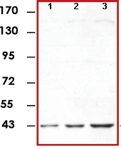 Western blot - Anti-ERK1 antibody [E19] (ab78918)