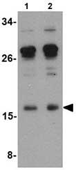 Western blot - Anti-IL17 antibody (ab79056)