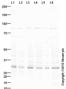 Western blot - Anti-Neuronal membrane glycoprotein M6-a antibody (ab79128)