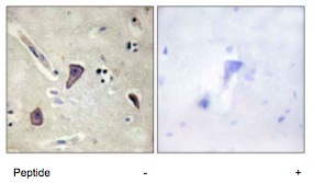 Immunohistochemistry (Formalin/PFA-fixed paraffin-embedded sections) - Anti-Kir6.2 antibody (ab79171)