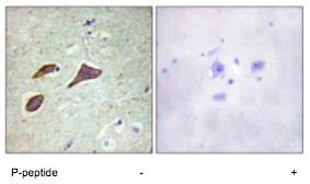 Immunohistochemistry (Formalin/PFA-fixed paraffin-embedded sections) - Anti-SCNN1B (phospho T615) antibody (ab79172)