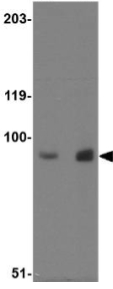 Western blot - Anti-MEX3D antibody (ab79208)