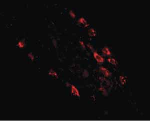 Immunocytochemistry/ Immunofluorescence - Anti-MEX3D antibody (ab79208)