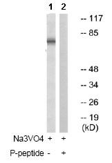 Western blot - Anti-Ezrin (phospho Y478) antibody (ab79256)