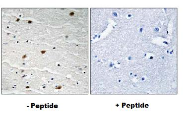 Immunohistochemistry (Formalin/PFA-fixed paraffin-embedded sections) - Anti-AKT1/2/3 antibody (ab79360)