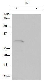 Immunoprecipitation - Anti-Hex antibody [EPR3361] (ab79392)