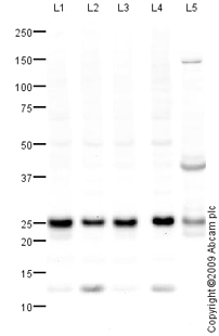 Western blot - Anti-RAB21 antibody (ab79713)