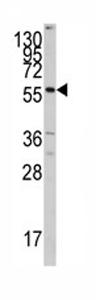 Western blot - Anti-CYP7A1 antibody - C-terminal (ab79847)