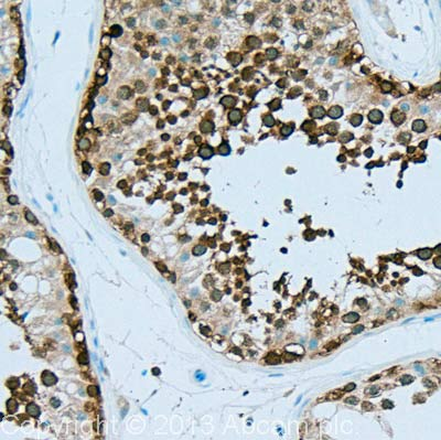 Immunohistochemistry (Formalin/PFA-fixed paraffin-embedded sections) - Anti-Hsp90 alpha antibody [2G5.G3] (ab79849)