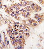 Immunohistochemistry (Formalin/PFA-fixed paraffin-embedded sections) - Anti-wdyhv1 antibody (ab79869)