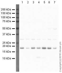 Western blot - Anti-Syndecan 2 antibody (ab79978)