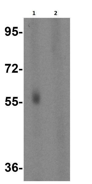 Western blot - Anti-BACE2 antibody (ab8024)