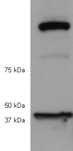 Western blot - Anti-p53R2 antibody (ab8105)