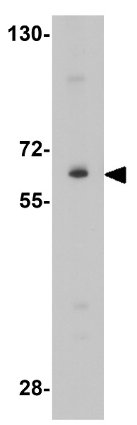 Western blot - Anti-IL1RAP antibody (ab8109)