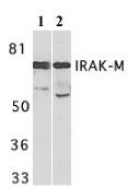 Western blot - IRAKM antibody (ab8116)