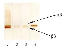 Western blot - Anti-S100 antibody [3B10] (ab8334)