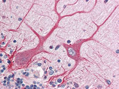 Immunohistochemistry (Formalin/PFA-fixed paraffin-embedded sections) - Anti-Notch1 intracellular domain antibody (ab8387)