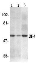 Western blot - Anti-DR4 antibody (ab8415)