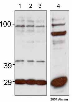 Western blot - Anti-FLIP delta + gamma antibody (ab8423)